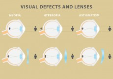 Free vector Vector Visual Defects And Lenses #10126