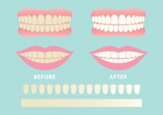 Free vector Clean And Dirty Teeth Vectors #10252
